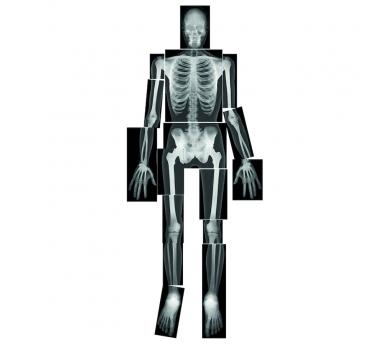 Radiografías de un esquelto humano